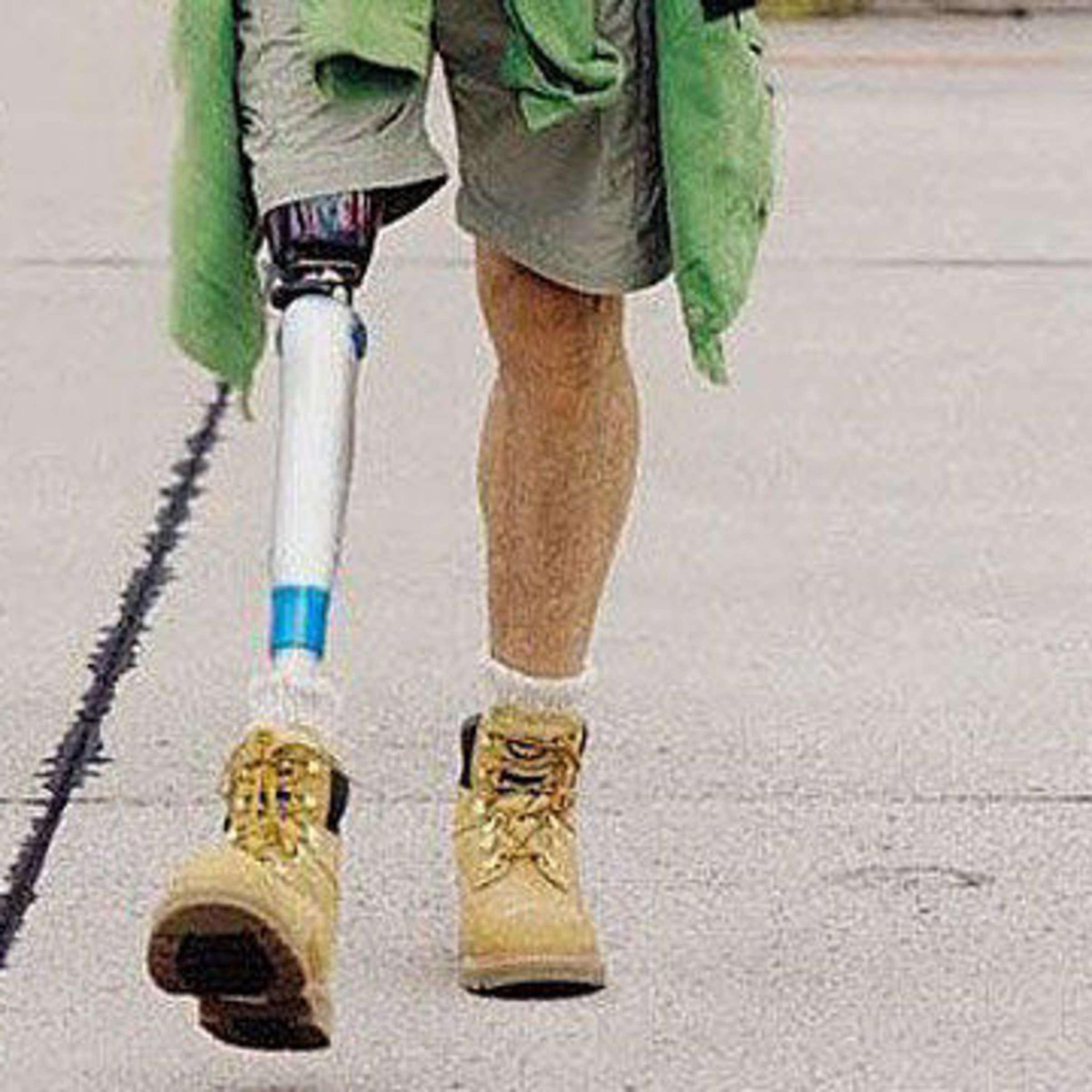 Ohne arme menschen beine und Nick Vujicic