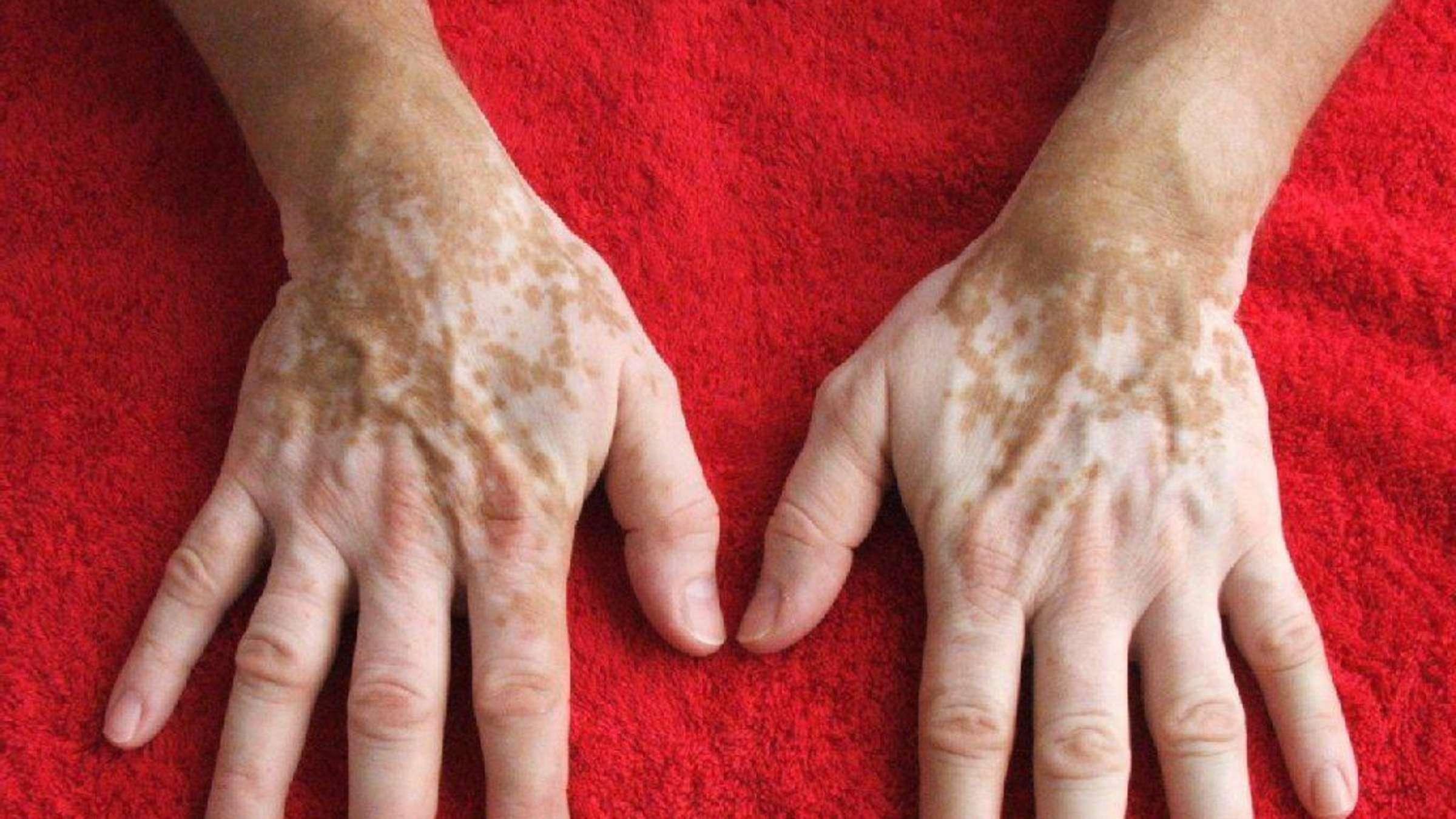 Haut punkte auf der kleine weiße ▷ Talgdrüsen