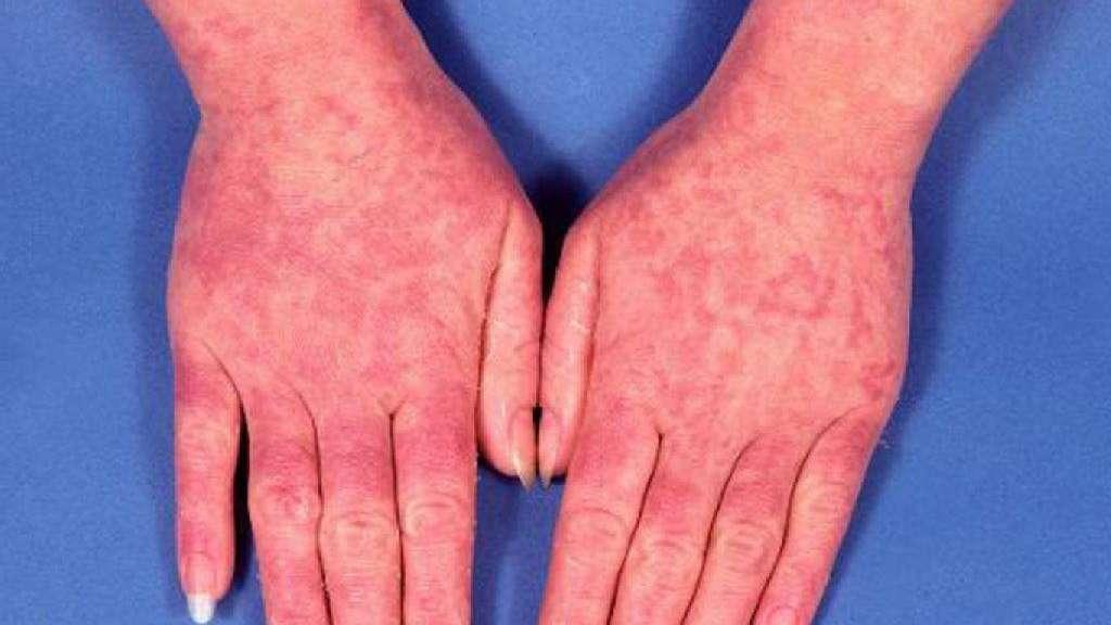 Lupus erythematodes: Diagnose