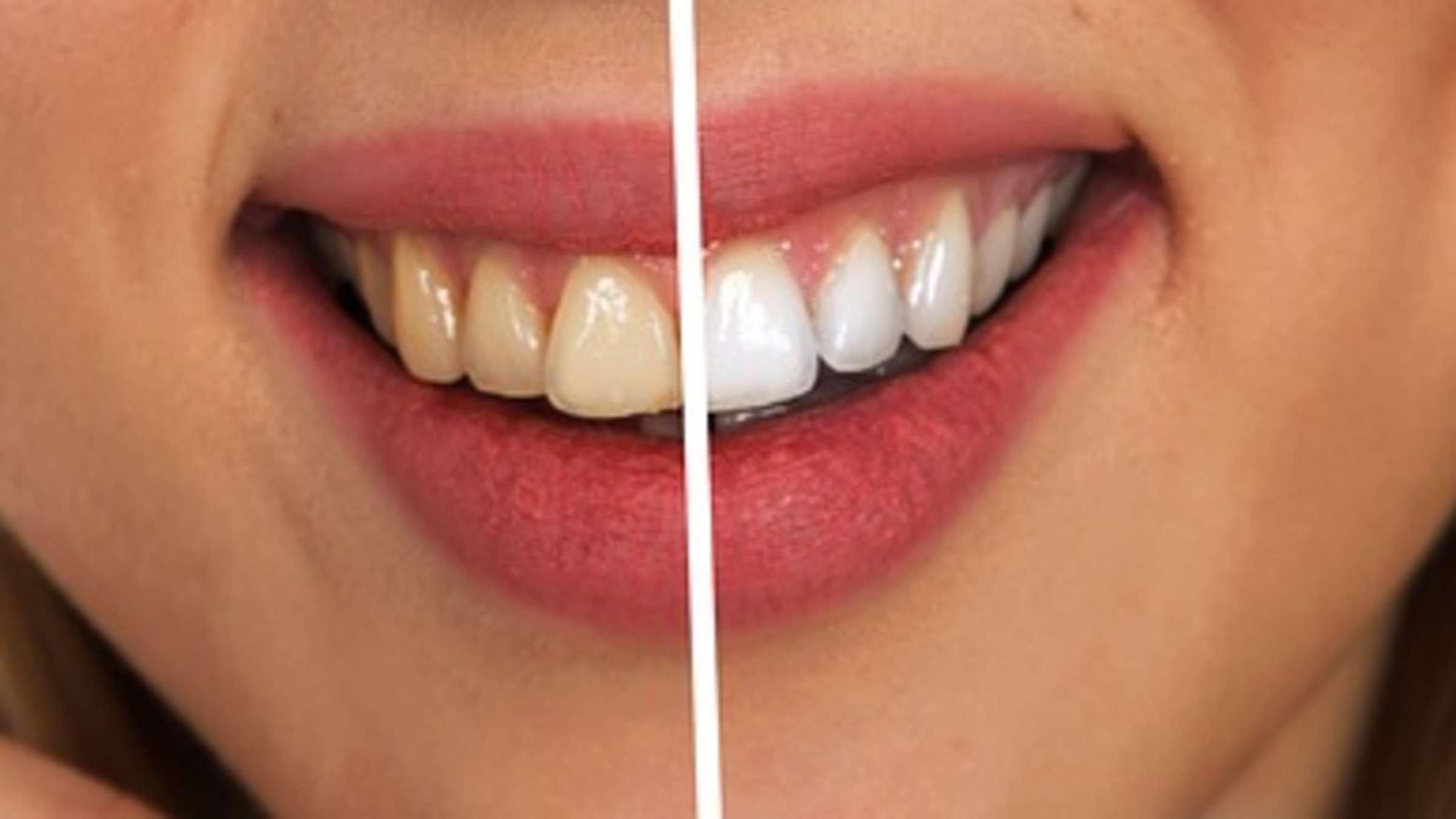 weißere zähne tipps